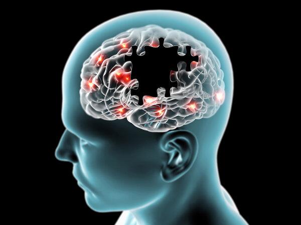 你大脑中的果糖有可能会引起阿尔茨海默病。