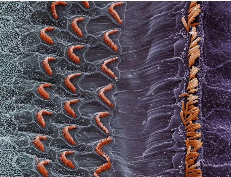 韩国发现了逆转细胞衰老的关键蛋白