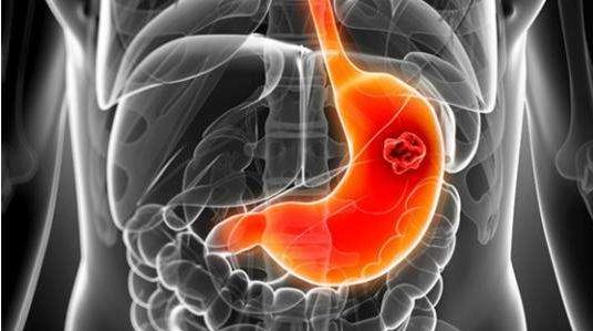 老胃病要警惕  这七类药会暗伤胃黏膜